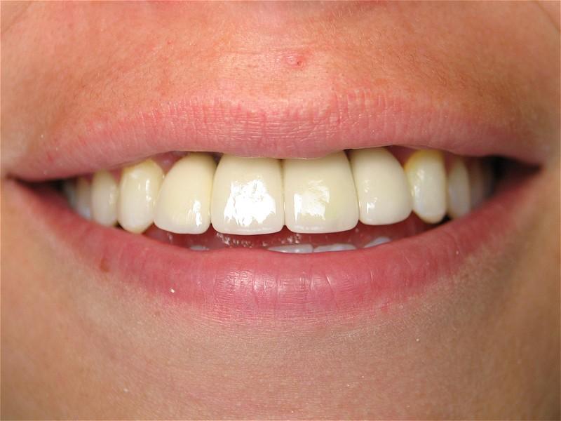 Một nụ cười toả nắng nhờ vào hàm răng chắc và đều