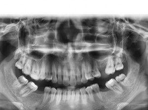 Quy-trinh-dieu-tri-implant-01