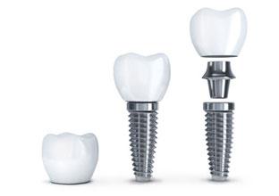 implant-nha-khoa-1