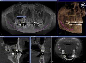 Phim chụp cắt lớp trước cấy ghép implant nha khoa