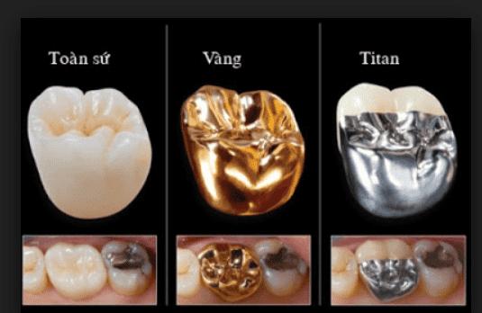 Phục hình răng sứ các loại
