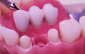 Phục hình bằng răng sứ