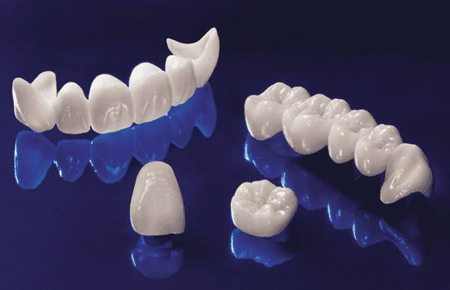 Phục hình răng toàn sứ