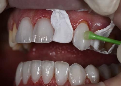 Bọc răng sứ để cải thiện tình trạng hô