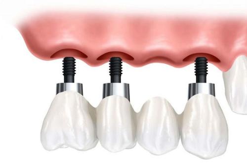 Có nên trồng răng implant không