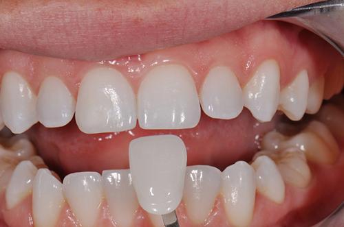 Làm răng sứ mất thời gian bao lâu