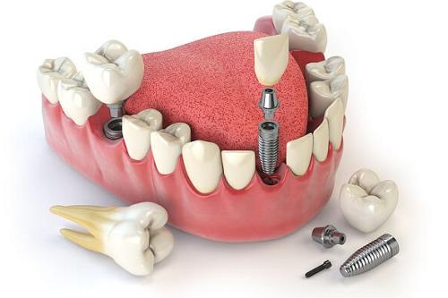 Cấy ghép răng implant có đau không – Hỏi đáp cùng nha sĩ