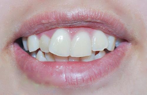 răng-cửa-không-đều