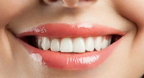 Giải đáp thắc mắc làm răng sứ mất thời gian bao lâu
