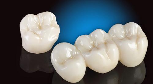 Làm răng sứ Cercon có bền không – Giá bọc răng sứ cercon