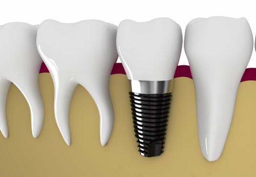 Trụ răng implant được cấy vào xương hàm