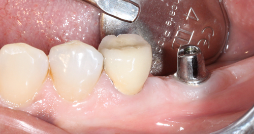 Kinh nghiệm trồng răng implant – 3 điều bạn nên làm rõ với Nha sĩ