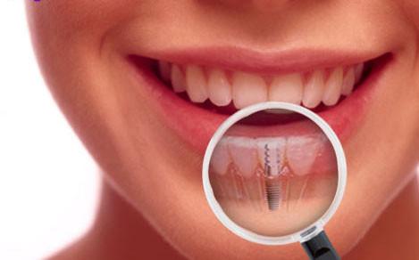 Sự thật về công nghệ cấy ghép implant có thể bạn chưa biết