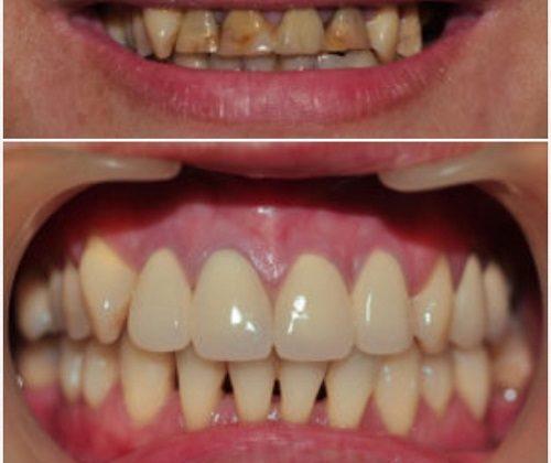 Tìm hiểu răng sứ titan là gì – Có nên bọc răng sứ titan không ?