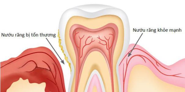 Hình minh họa viêm nướu răng