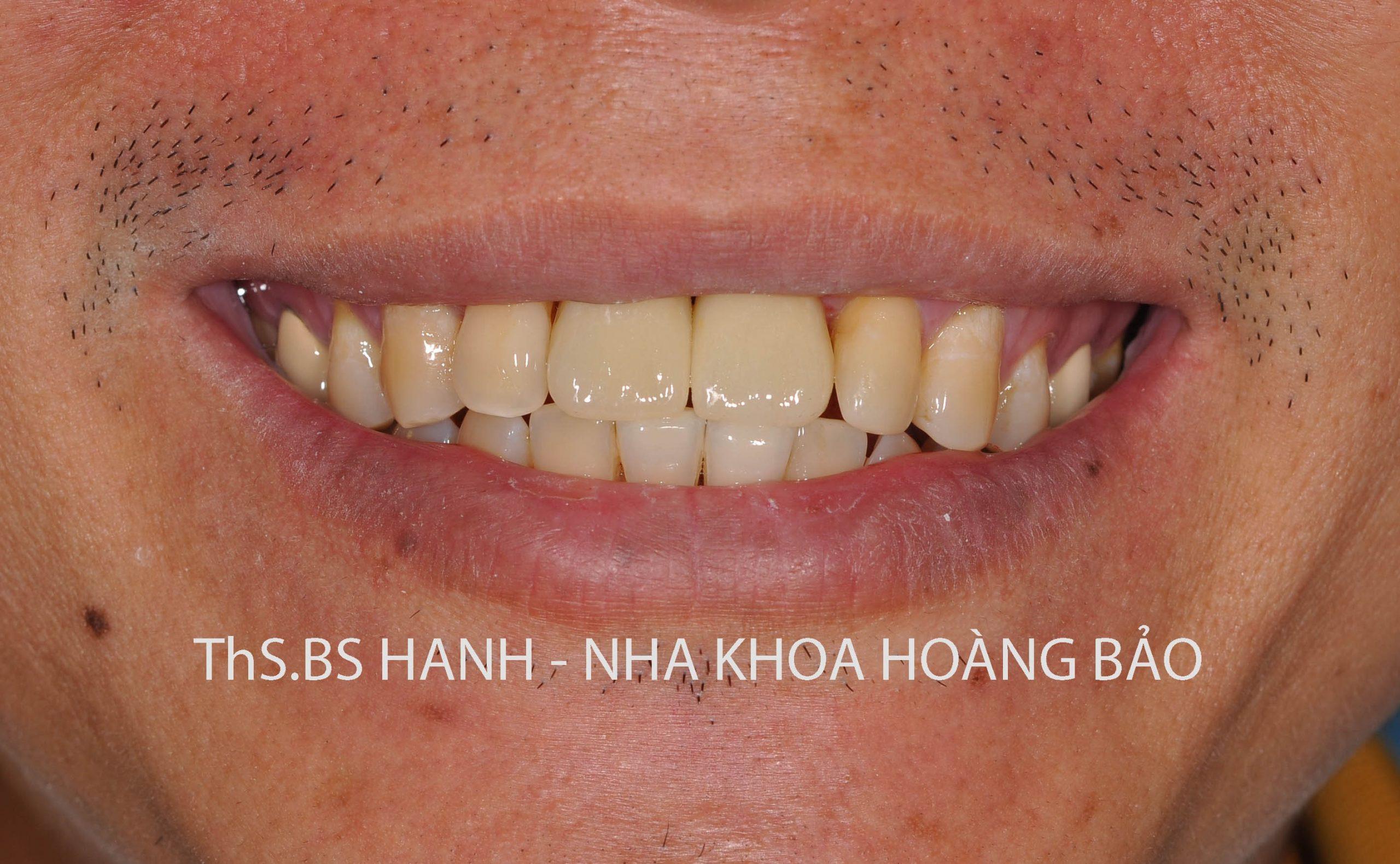 Implant -hc 01