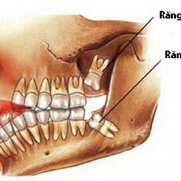 Răng khôn là gì ? Nhổ răng khôn ở đâu