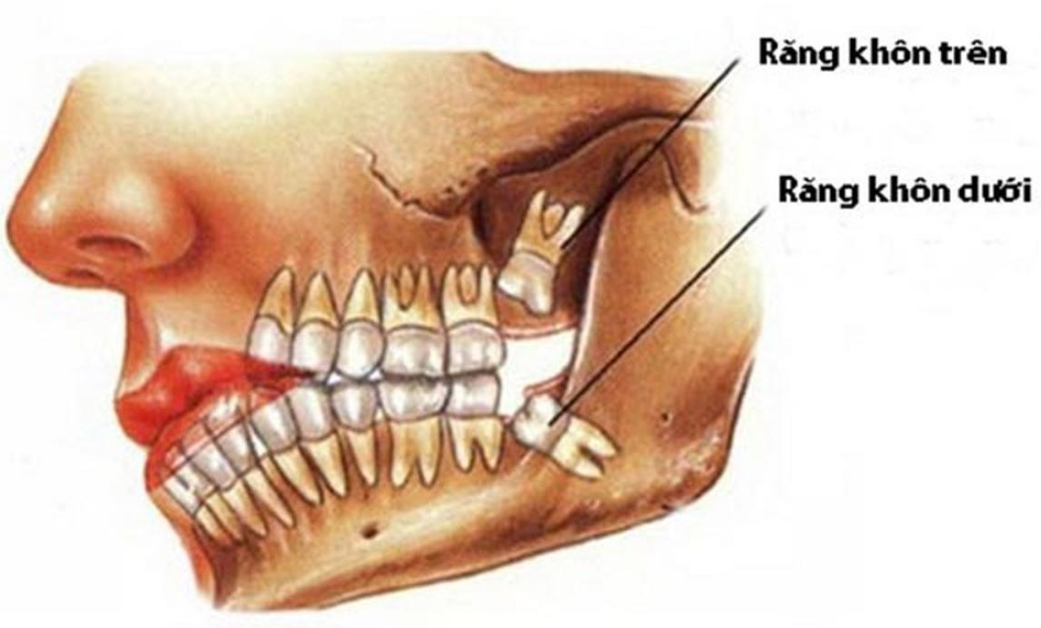 Răng khôn mọc trên và dưới hàm