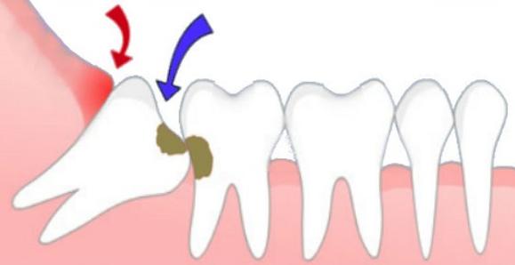 Răng khôn mọc trong hàm