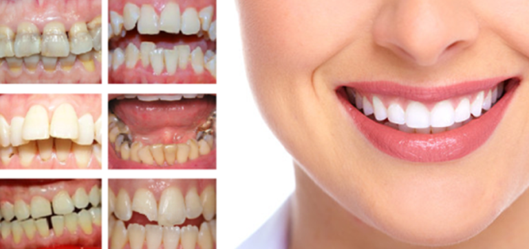 Nên bọc răng sứ ở đâu tốt nhất tại TPHCM?