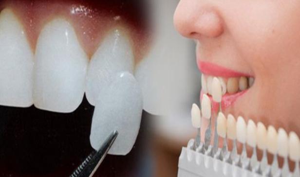 Phương pháp dán răng sứ Veneer đơn giản và tiện lợi