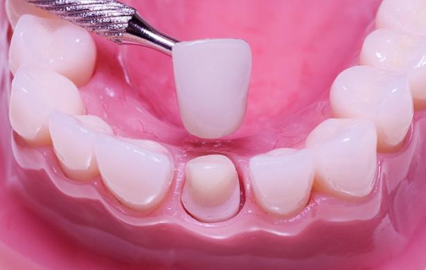 Công nghệ bọc răng sứ có tác hại gì không?