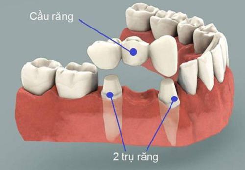 So sánh giữa làm răng implant và cầu răng – Ưu nhược điểm ra sao