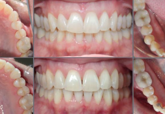 Chỉnh răng thẩm mỹ invisalign là gì?