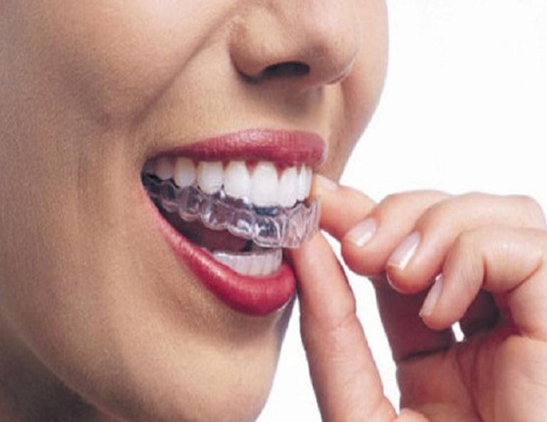 Chỉnh răng invisalign