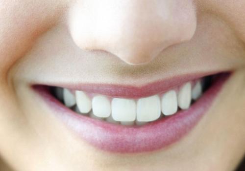 hàm-răng-đều-đẹp
