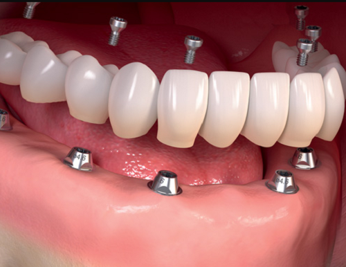 implant-kết-hợp-cầu-răng-sứ