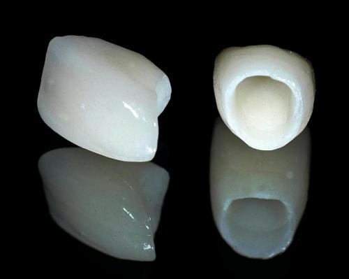 Phần mão sứ được làm từ chất liệu cao cấp