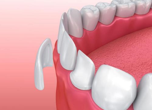 Dán răng sứ veneer | Bọc răng sứ không cần mài răng – Ưu nhược điểm