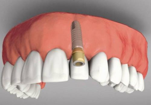 Lưu ý khi rồng răng implant