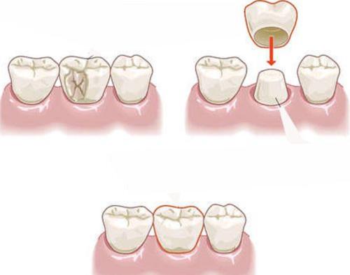 Lấy tuỷ răng để bọc răng sứ
