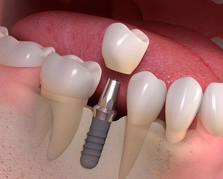 qui-trinh-cay-implant