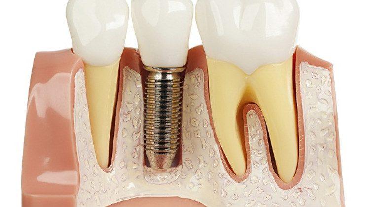 Quy trình cấy ghép răng implant bằng công nghệ mới như thế nào?