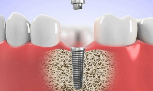 răng-implant-có-bền-không-01