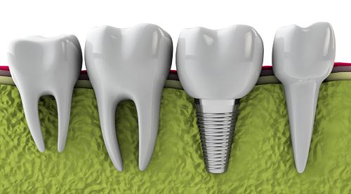 răng-implant-có-bền-không
