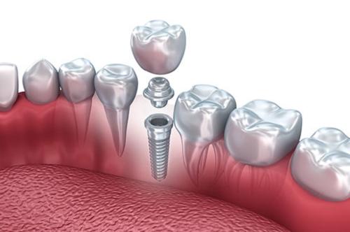 Cấu trúc của trụ răng implant