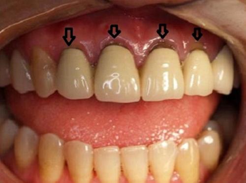 Làm lại răng sứ – Chú ý để đảm bảo sức khoẻ răng miệng