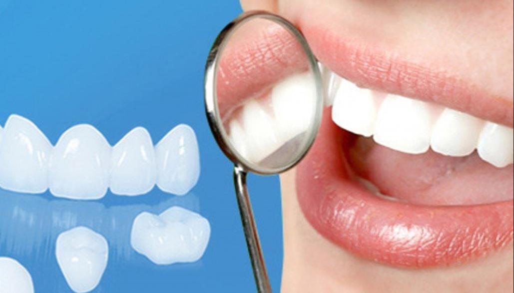 Muốn răng sứ bền đẹp đòi hỏi quy trình bọc răng sứ phải chuẩn