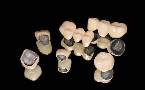 răng-sứ-titan
