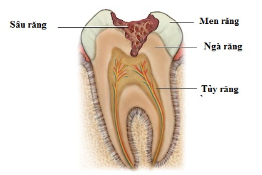 sâu răng là gì
