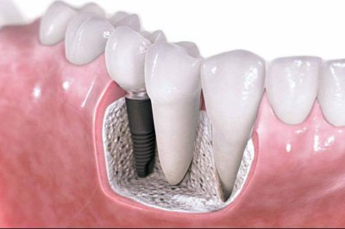 Loại răng implant