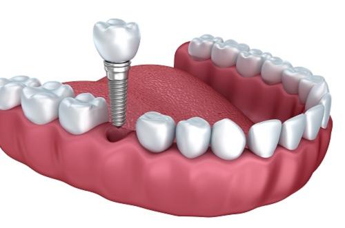 Trụ răng abutment - khi làm răng implant