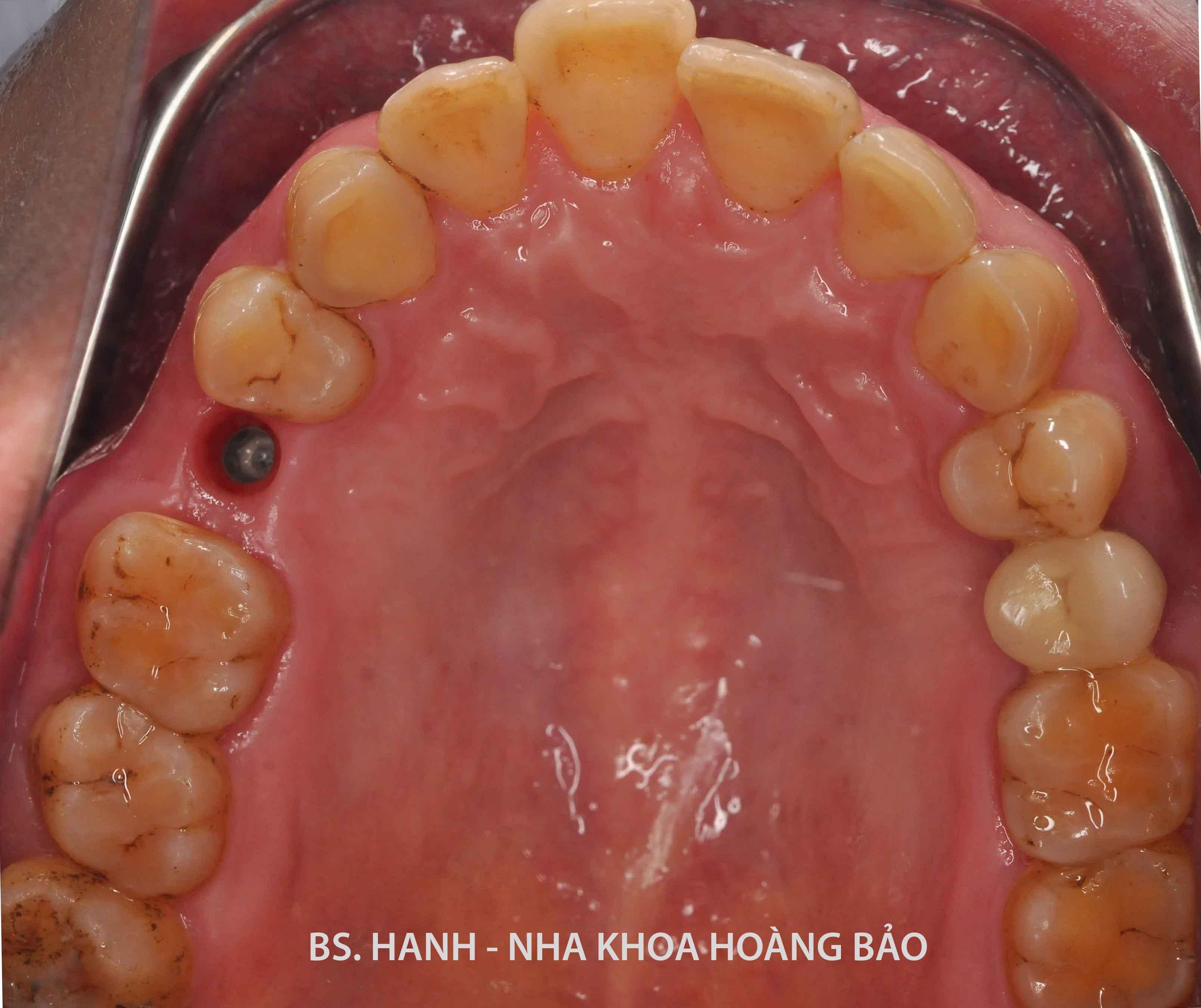Implant.mhnguyen.02