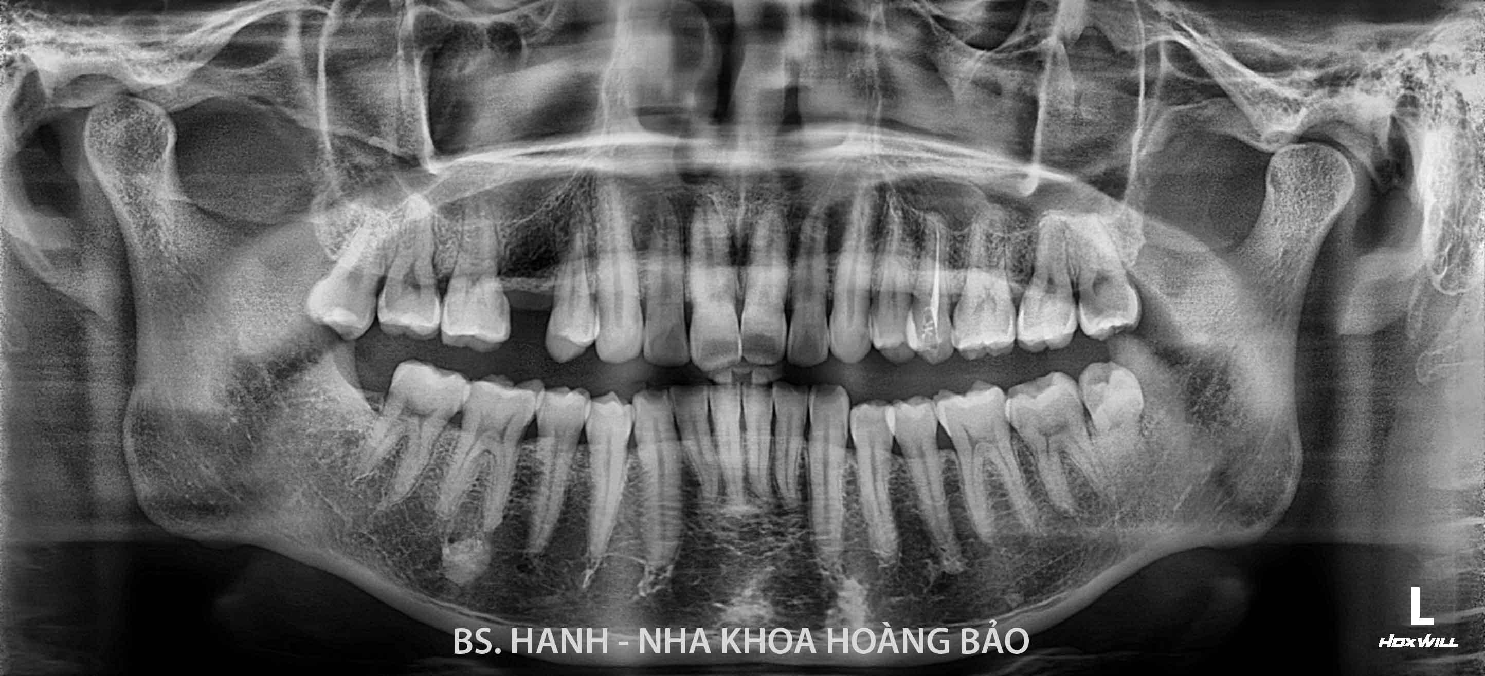 Mac Hoang Nguyen_N.0719