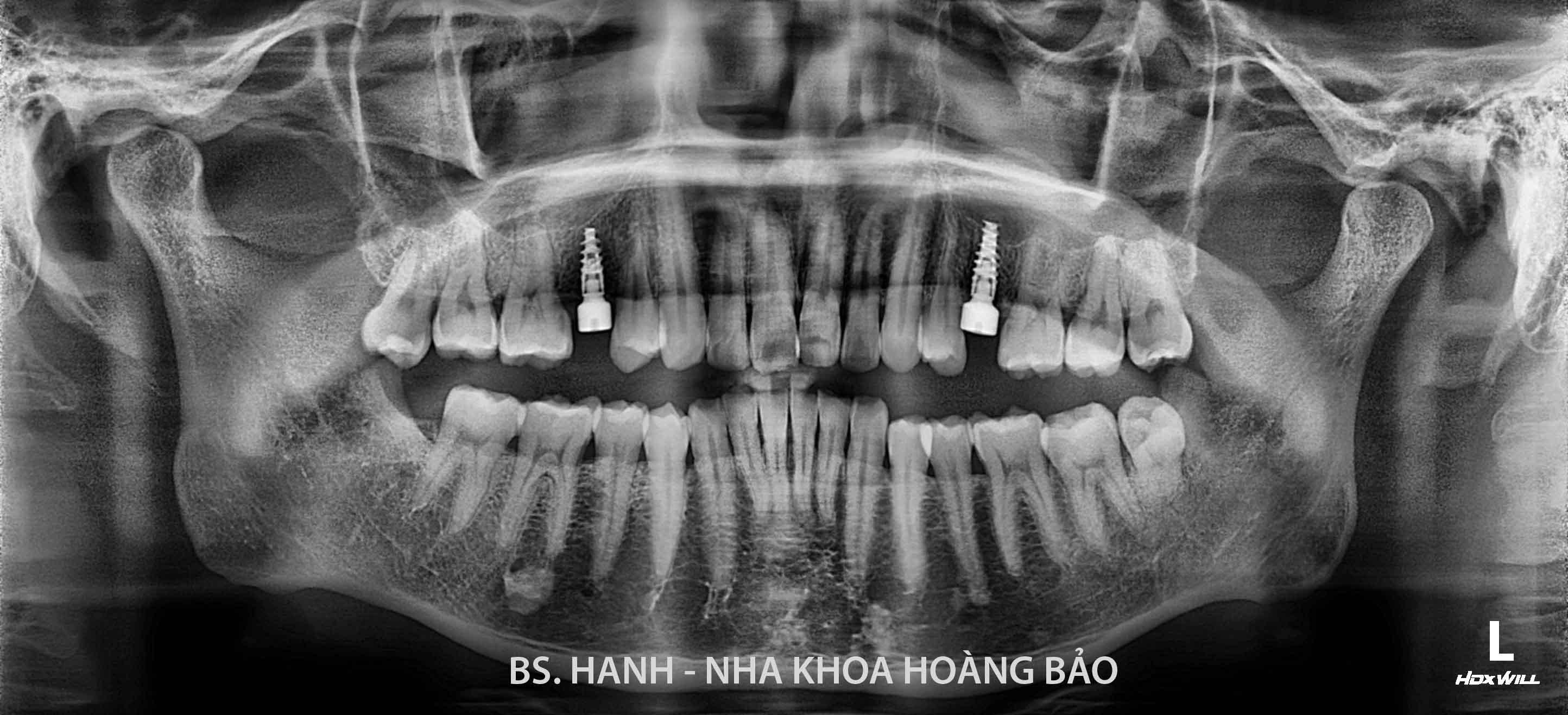 Mac Hoang Nguyen_N.0719_1