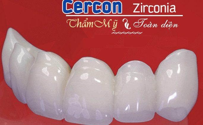 Răng sứ cercon là gì ?- Có nên trồng răng sứ cercon hay không?